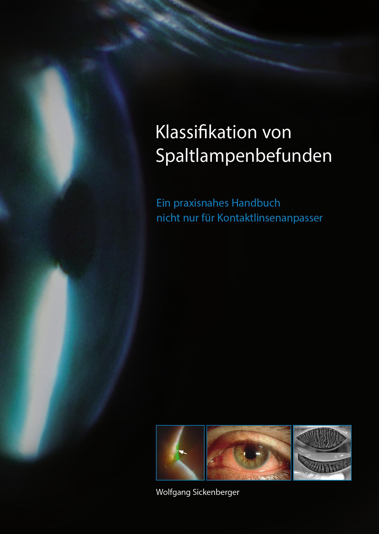 Klassifikation_von_Spaltlampenbefunden_de_VS-01
