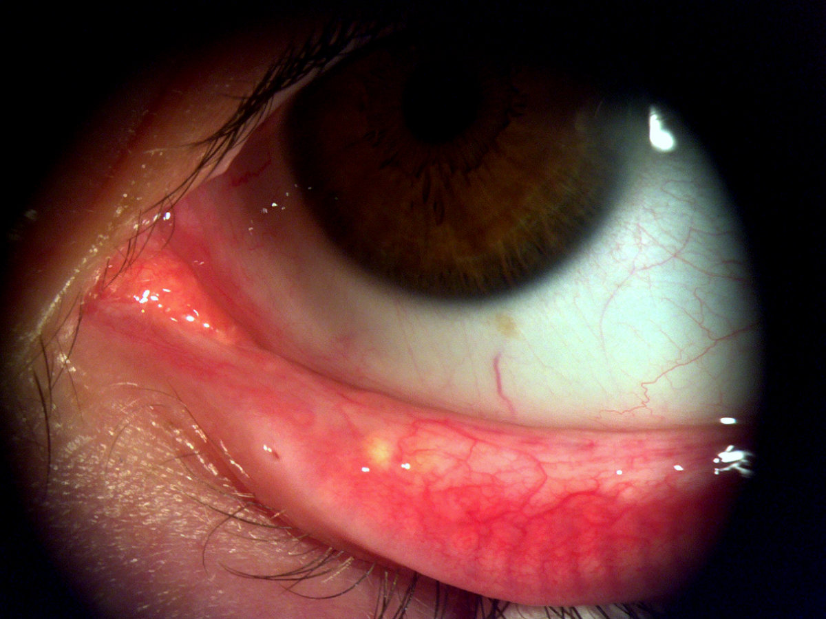 Dry Eye gerötet Kontaktlinse Augentropfen Forschung Gefäß
