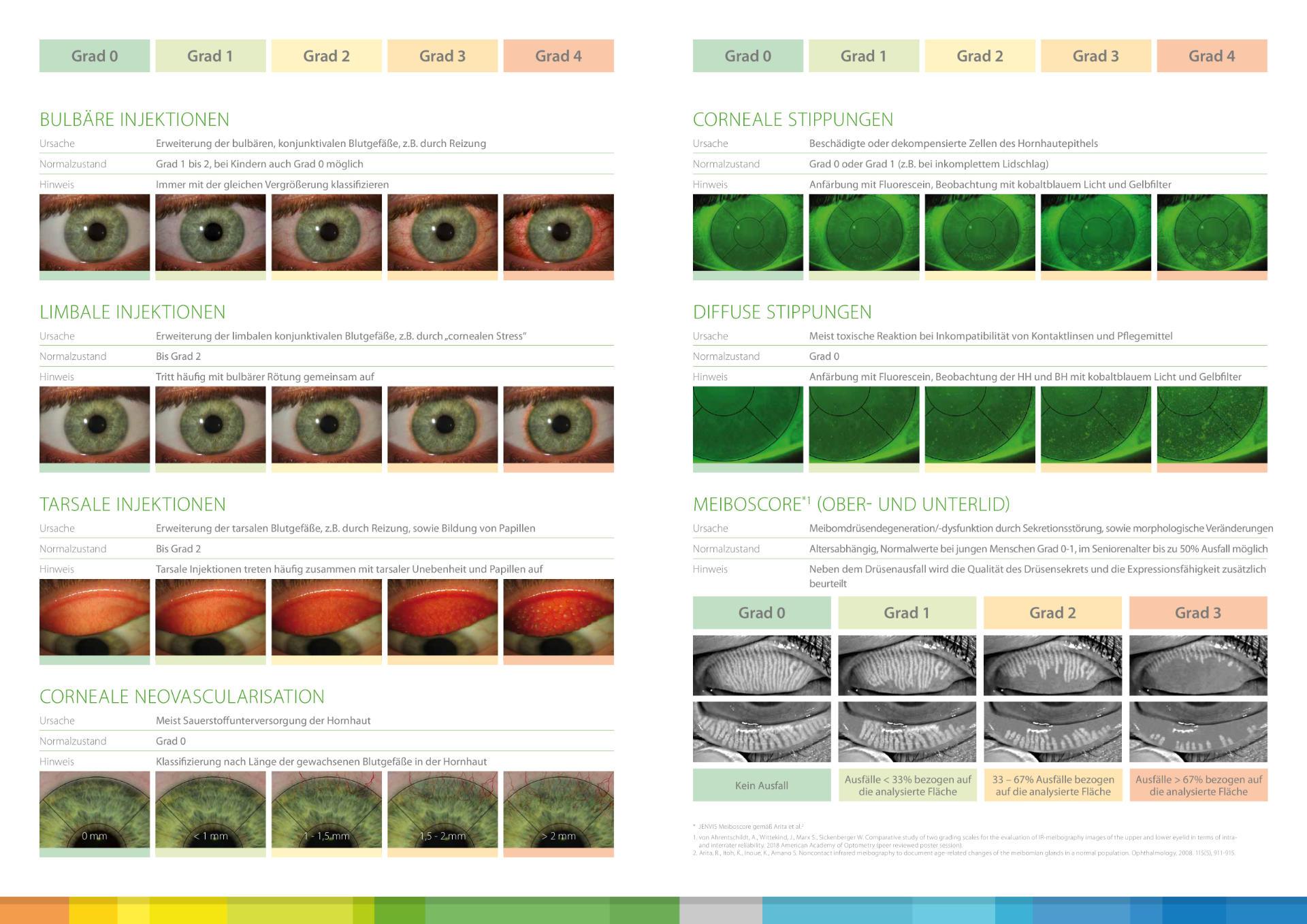 Dry Eye Trockenes Auge Kontaktlinse JenVis Alcon