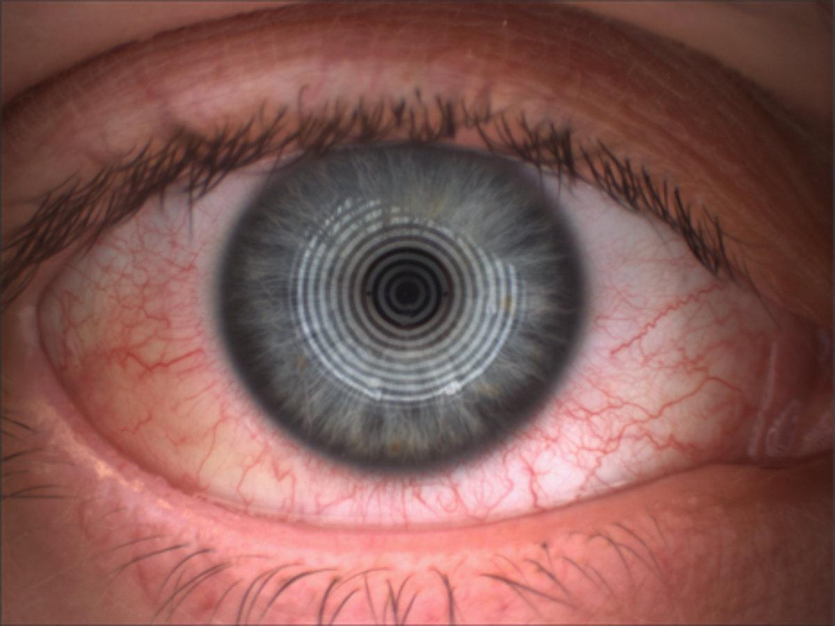 Rotes Auge Dry Eye Trockenes Auge Kontaktlinse Studie Test Forschung
