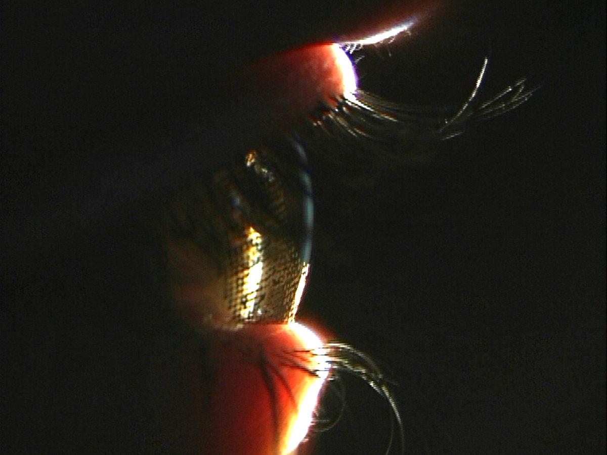 Kontaktlinse Forschung Sehen Messung Klinische Studie