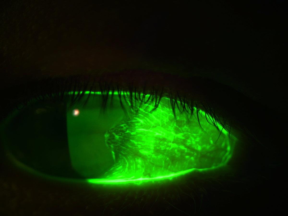 Trockenes Auge Verschwommen Sehen Schlecht Studie Forschung