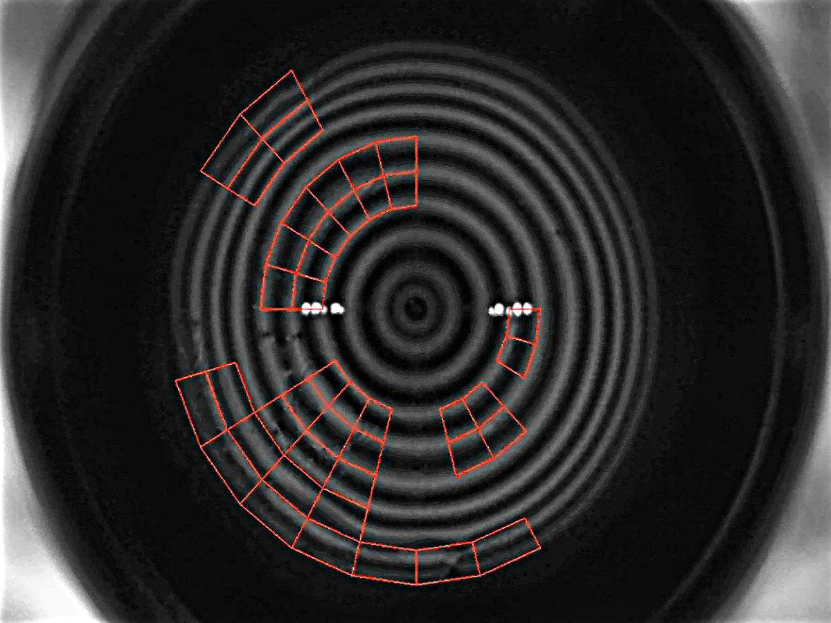 Benetzung Tränenfilm Auge Kontaktlinse Forschung Klinische Studie Verschwommen Sehen